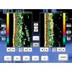 Dermalab Combo® - ультразвуковая, функциональная и видео дерматоскопия
