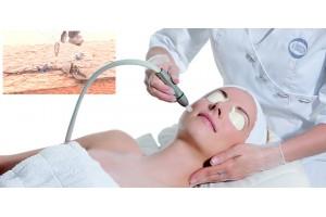 Аппараты для микродермабразии